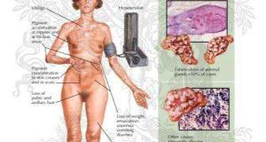 Addison Hastalığı (Adrenal Yetmezlik)