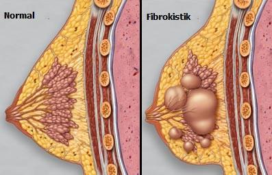 Memenin Fibrokistik Değişiklikleri