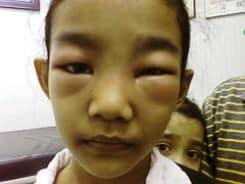 Nefrotik Sendrom - Çocuklarda