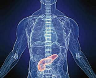 Pankreatit  (Akut Başlangıç)