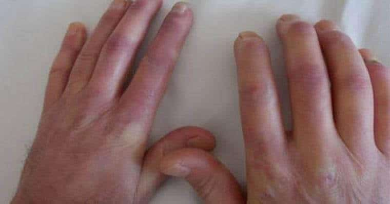 Polimiyozit - Dermatomiyozit