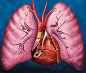 Pulmoner  Tromboemboli
