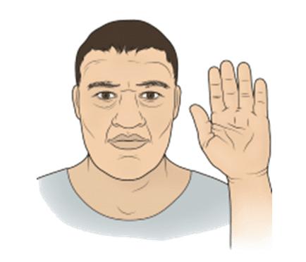 Akromegali (Dev Hastalığı)