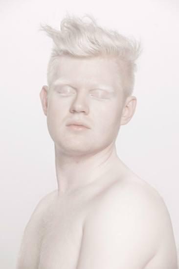 Albinizm Hastalığı Nedir
