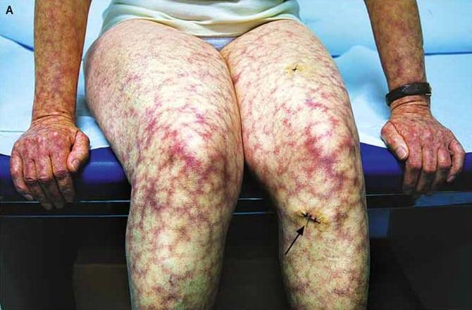 Antifosfolipid Sendromu Klinik Belirtileri