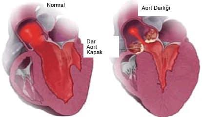 Aort Koarktasyonu (Aort Darlığı)