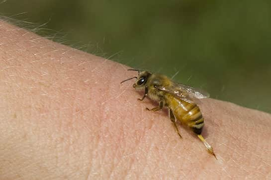 Arı Alerjisi Nedir