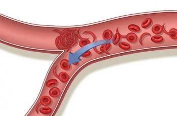 Damar Sertliği (Ateroskleroz)