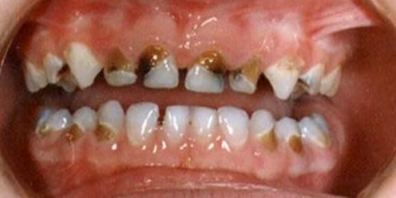 Diş Çürüğü Başlangıcı