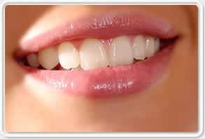 Diş Rengi Beyazlatma