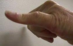 Düğme İliği Deformitesi
