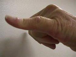 Düğme İliği Deformitesi Tedavisi