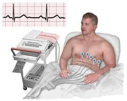 EKG Nedir?