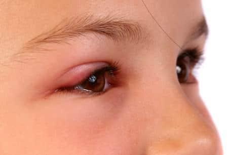 Göz Kapağı Hastalıkları