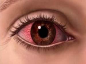 Glokom ( Göz Tansiyonu )