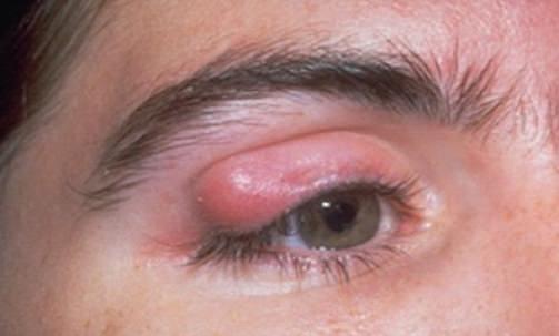 Göz Kapağı Tümörleri