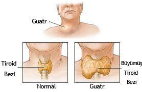 Guatr Hastalığı Tedavi ve Ameliyatı