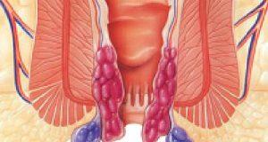 Hemoroid (Basur)
