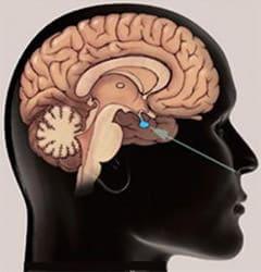 Hipofiz Tümörü Ameliyatı