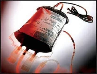 Kan Nakli Nasıl Yapılır?