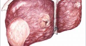Karaciğer Kanserleri