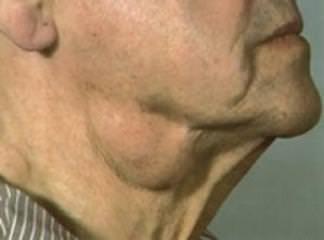 Lenfadenopatiler Hastalığı