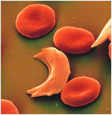 Orak Hücreli Anemi ( Sickle-cell Anemisi )