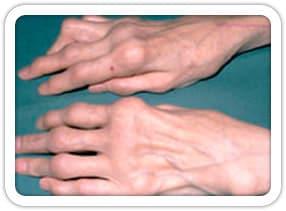 Romatoid Artrit (El)