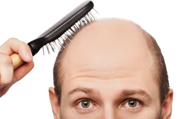 Saç Dökülmesi Nedenleri?