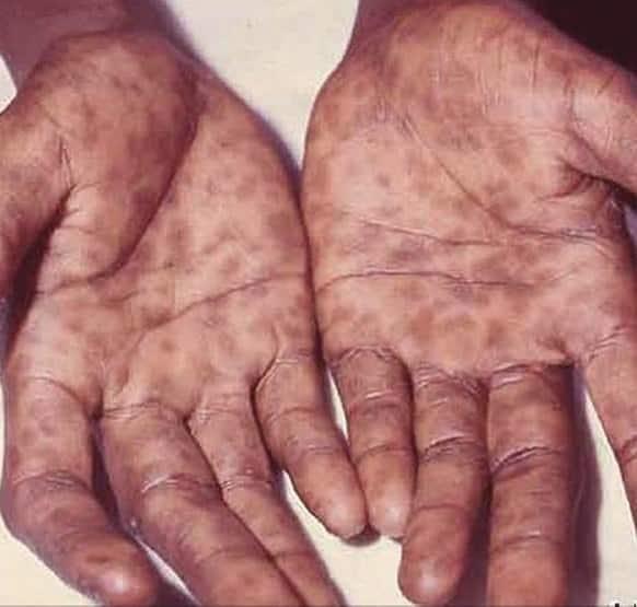 Frengi Hastalığı Nedir?