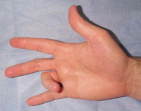 Tetik Parmak Hastalığı